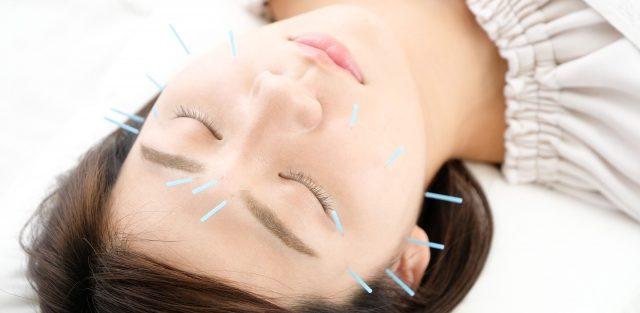 顔面神経麻痺の治療と女性