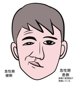 急性期顔面麻痺