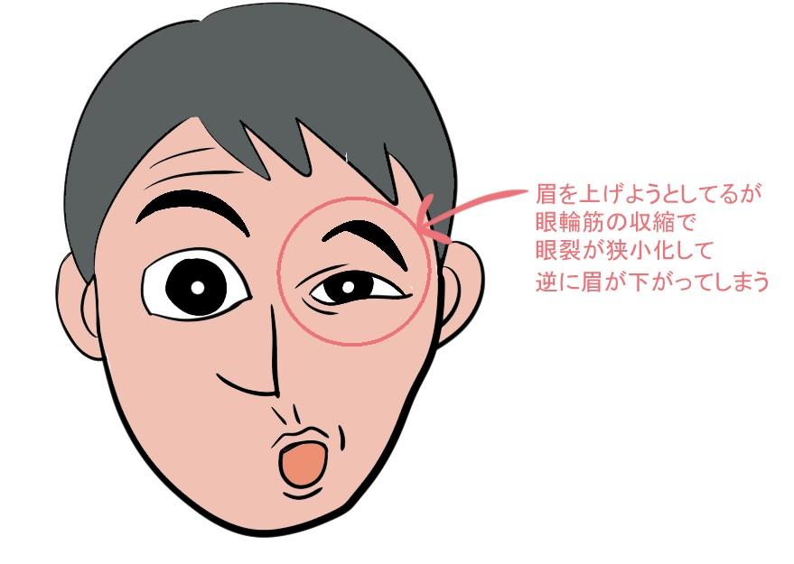 顔面神経麻痺の拘縮